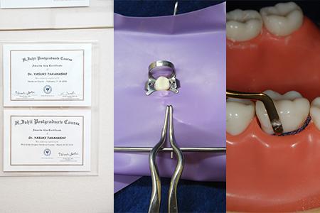 顕微鏡による歯内療法(歯の根の治療)